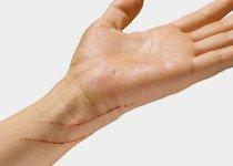 Crème cicatrisante à l'acide hyaluronique : l'actif star pour effacer les cicatrices !